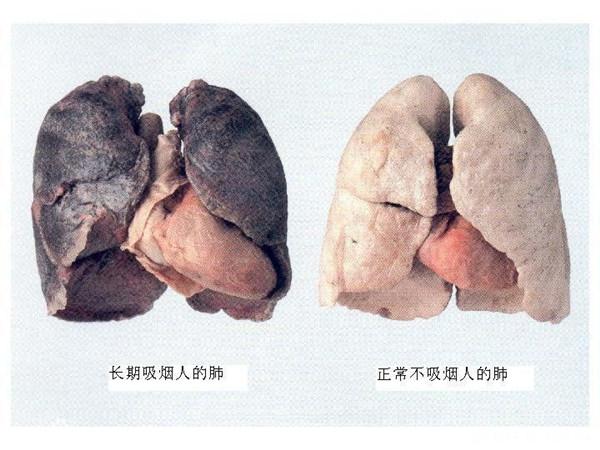 吸烟易致肺癌 少吸可长寿