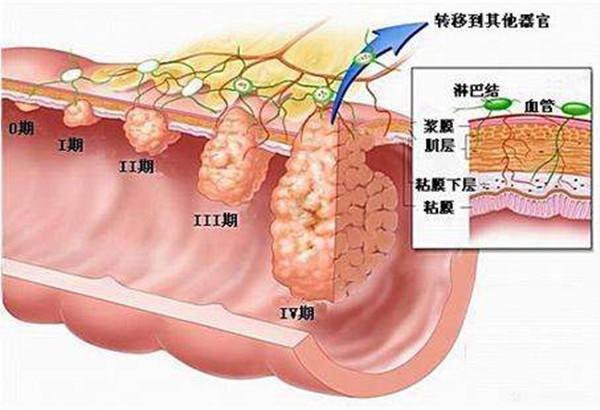 如何早期发现大肠癌?