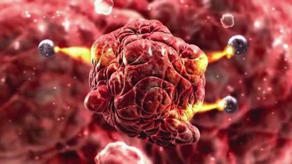 世上本无癌,但起源于瘀和堵!