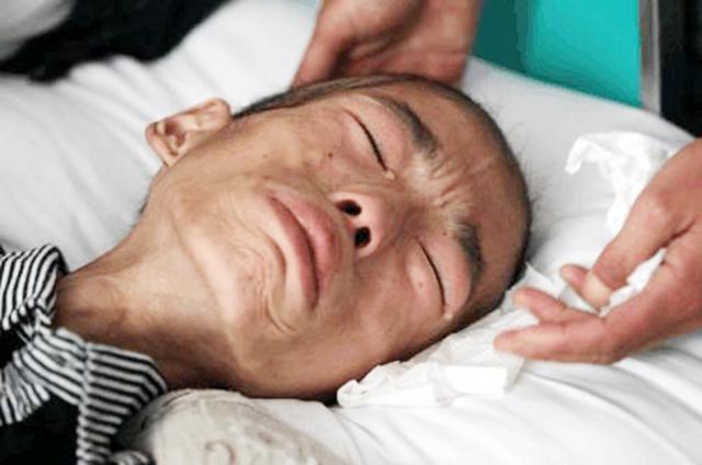 刘自力博士:大肠癌早发现三个月,多活三十年!