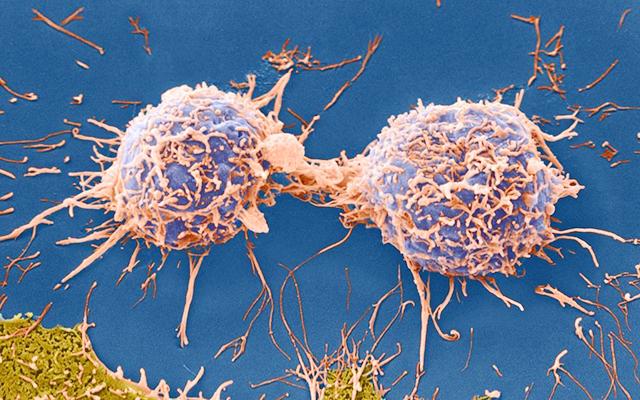 中医博士刘自力:癌症为什么会扩散、转移?